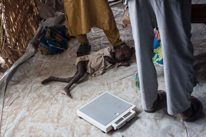 This boy is being treated for severe acute malnutrition in June at a Unicef nutrition clinic in Muna camp, which houses