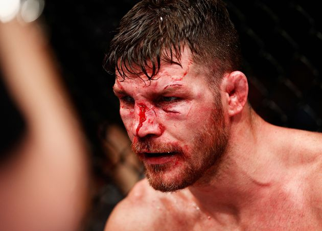 Despite All The Blood, MMA is Actually Safer Than