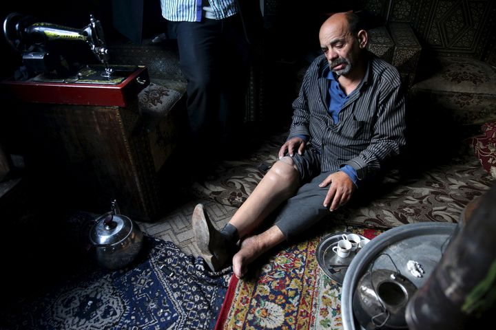 Shahrour, 54, whose leg was amputated due to complications from diabetes, sits in his home in the besieged town of Arbeen, in