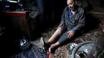 "Shahrour, 54, whose leg was amputated due to complications from diabetes, sits in his home in the besieged town of Arbeen, in Damascus suburbs, Syria February 6, 2016. Shahrour said he developed diabetes at the beginning of the war in Syria. A lack of insulin led to his medical condition worsening and his right foot had to be amputated. Recently he also suffered a stroke that paralysed half his face. He and part of his extended family, a total of 18 people, live together and struggle to get by.   REUTERS/Bassam Khabieh    SEARCH ""SHAHROUR"" FOR ALL IMAGES    TPX IMAGES OF THE DAY"