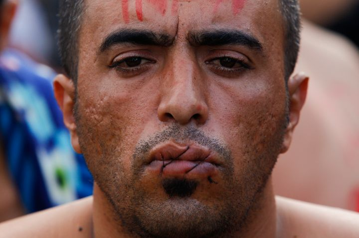 A migrant with his mouth sewn shut in protest sits at the border with Greece near the village of Gevgelija, Macedonia Novembe