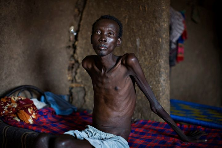 A tuberculosis patient in Sudan. Tuberculosis is the top infectious killer in the world.