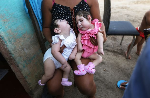 A family member holds twins Eloisa (L) and Eloa, both 8 months old and both born with microcephaly, during...