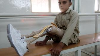 A disabled Afghan boy waits for treatment at an ICRC hospital for war victims at the Orthopedic Center of the International Committee of the Red Cross in Jalalabad, April 7, 2012. The ICRC provides artificial limbs to hundreds of invalids in Afghanistan, most of who are war victims. REUTERS/ Parwiz (AFGHANISTAN - Tags: CIVIL UNREST SOCIETY TPX IMAGES OF THE DAY)