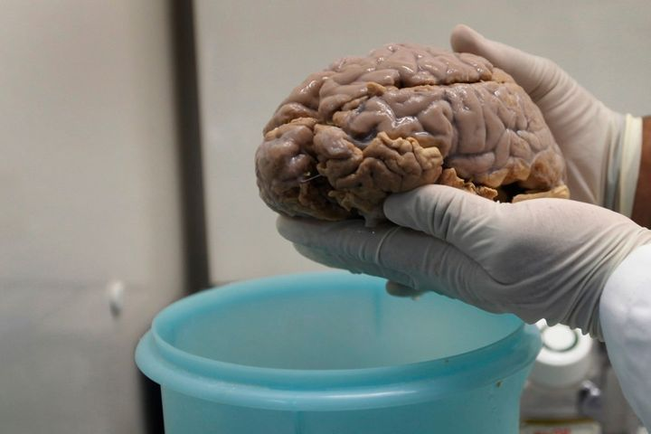 <p>A researcher holds a brain with Alzheimer's disease.</p>