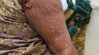 A woman shows scars on her arm at a hospital in Dakar caused by using skin lightening creams on May 20, 2009. The creams usually contain hydroxyquinone, a skin-bleaching chemical, as well as high doses of steroids. The use of hydroxyquinone was banned in the European Union in 2001 because it causes severe skin irritation. And the high doses of steroids found in the illegal creams should only be available on prescription because they can cause such serious disruption to the body's hormone levels.  AFP PHOTO / SEYLLOU (Photo credit should read SEYLLOU/AFP/Getty Images)