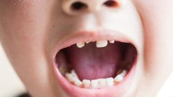 Tooth Decay Is The 'Leading Cause Of Child Hospital Admissions', So Here's How To Prevent