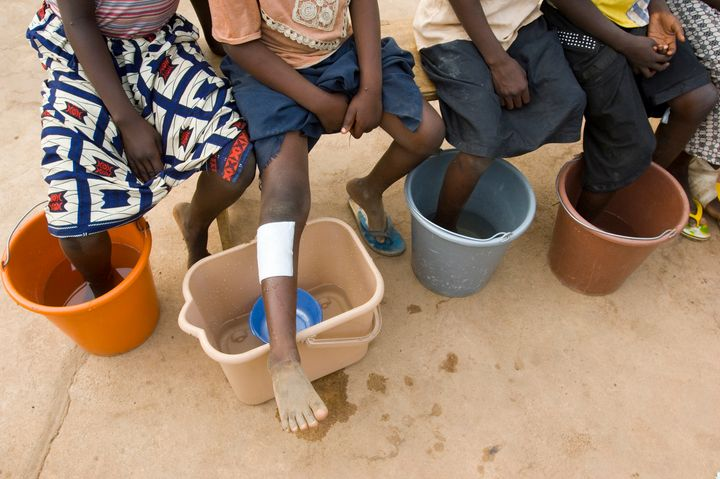 Patients with Guinea worms emerging soak their feet in cold water to hasten the painful emergence at the Savelugu Case Contai
