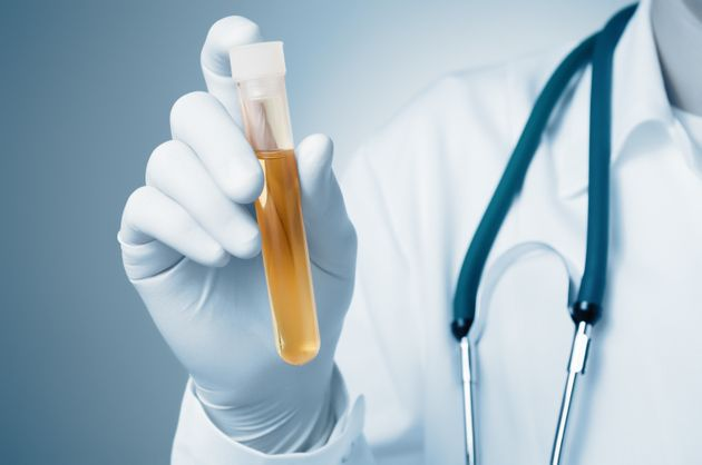 There's a popular notion that urine is sterile, but recent research suggests that's not