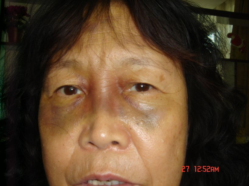 Huuchinhuu after being beaten during her clandestine imprisonment.