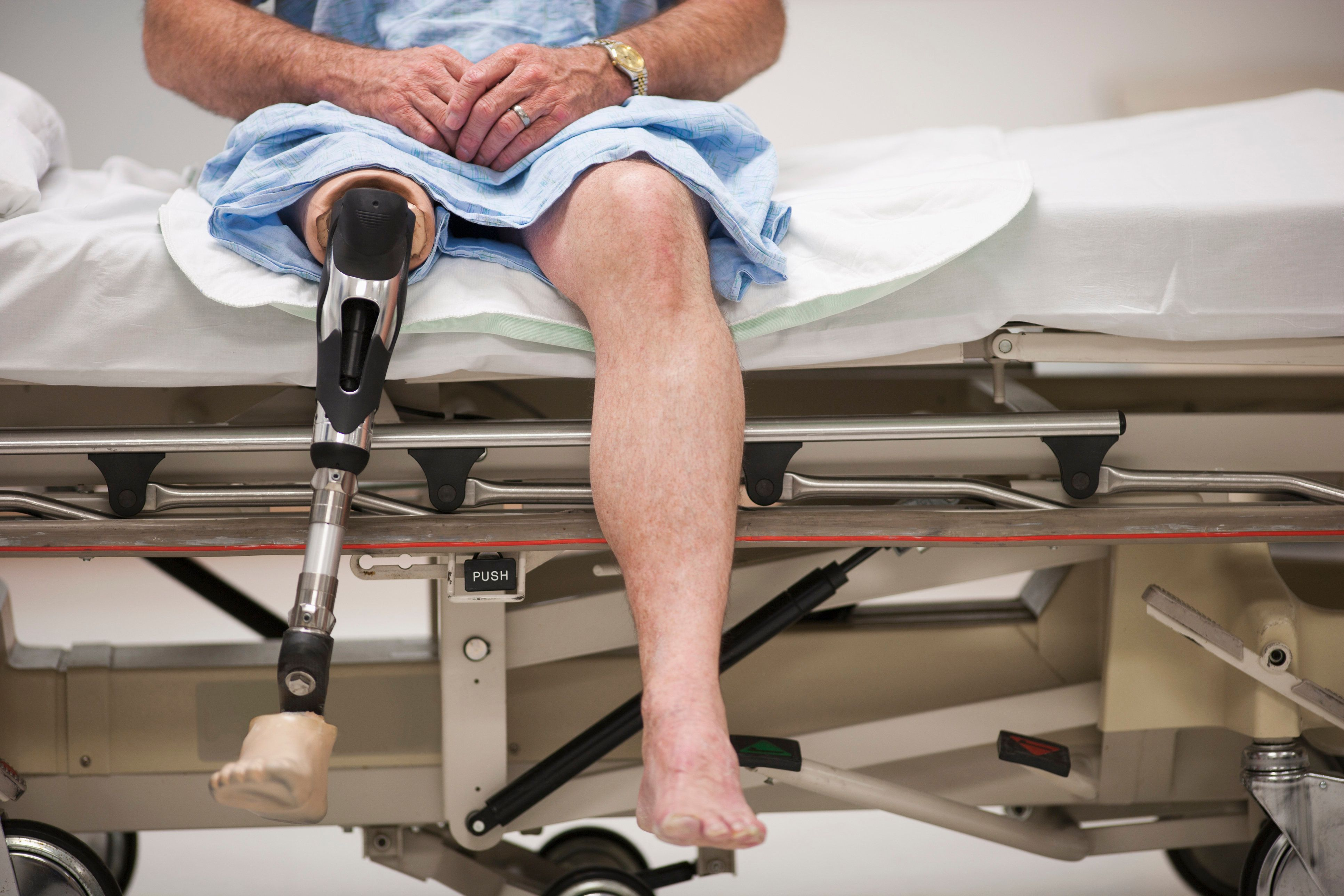 Patient with artificial leg sitting on hospital bed