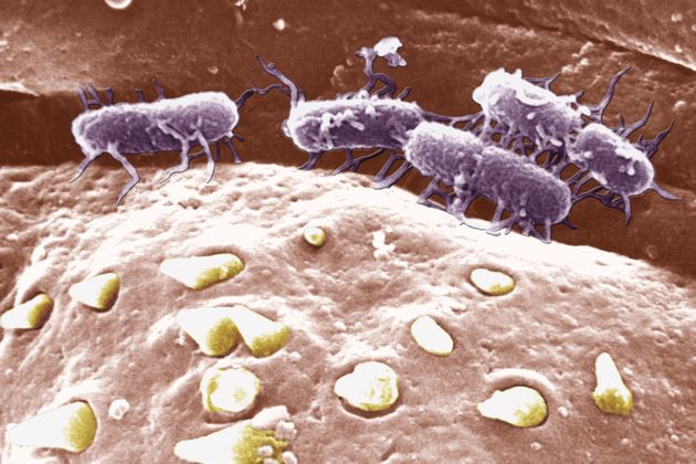 Scientists Turn Salmonella Into 'Cancer-Seeking Missile' To Destroy Brain