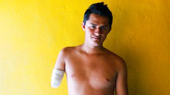 Arturo Medina 22 lost his arm in 2010 after falling from a freight train in Mexico while trying to reach the US