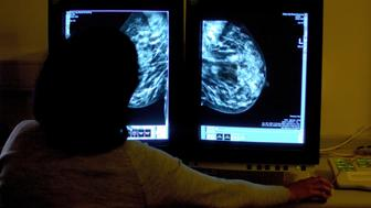 Embargoed to 0001 Tuesday November 8File photo dated 15/06/06 of a consultant studying a mammogram. Breast cancer diagnostic and screening services across the UK are under threat because of serious staffing problems, experts have warned.