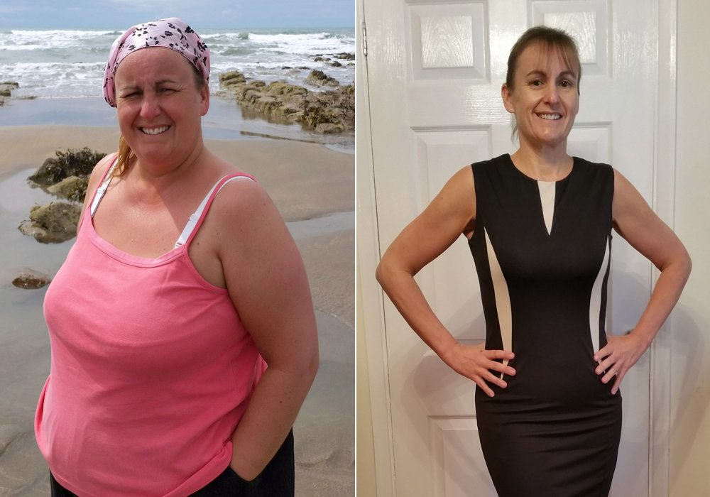 Woman Who Was Mistaken For Gastric Band Patient In Hospital Loses 7