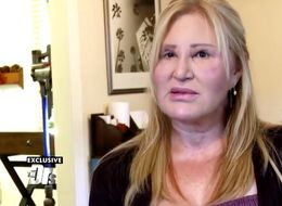 Woman Shares Cosmetic Surgery Warning After Fillers Left Her Feeling 'Like A Monster'