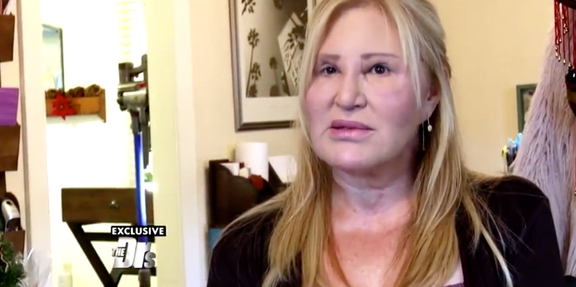 Woman Shares Cosmetic Surgery Warning After Fillers Left