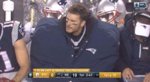 Tom Brady's coat isgiant.