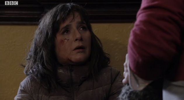 'EastEnders' Bus Crash Spoilers: Who Dies? Where's Whitney Carter? Here Are All Our Questions And