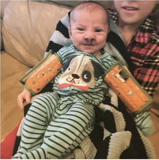 At 24 weeks, Sara Heller and her partner learned their son Brody had a bilateral cleft lip and palate.