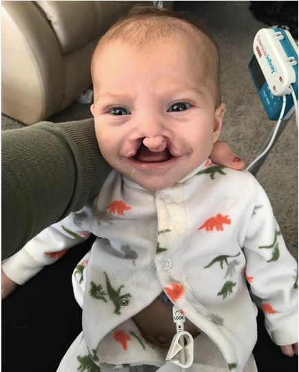 Brody now has a gastrostomy button (G-button) on his stomach to help with feeding. This photo was taken before his first cleft repair surgery.