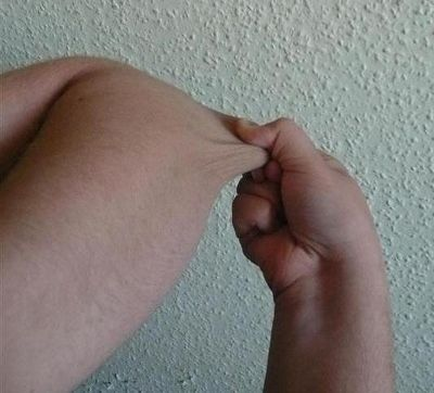 <strong>One common sign of EDS is skin hyperextensibility.  In this photo, a 16</strong>-<strong>year-old white male EDS pati
