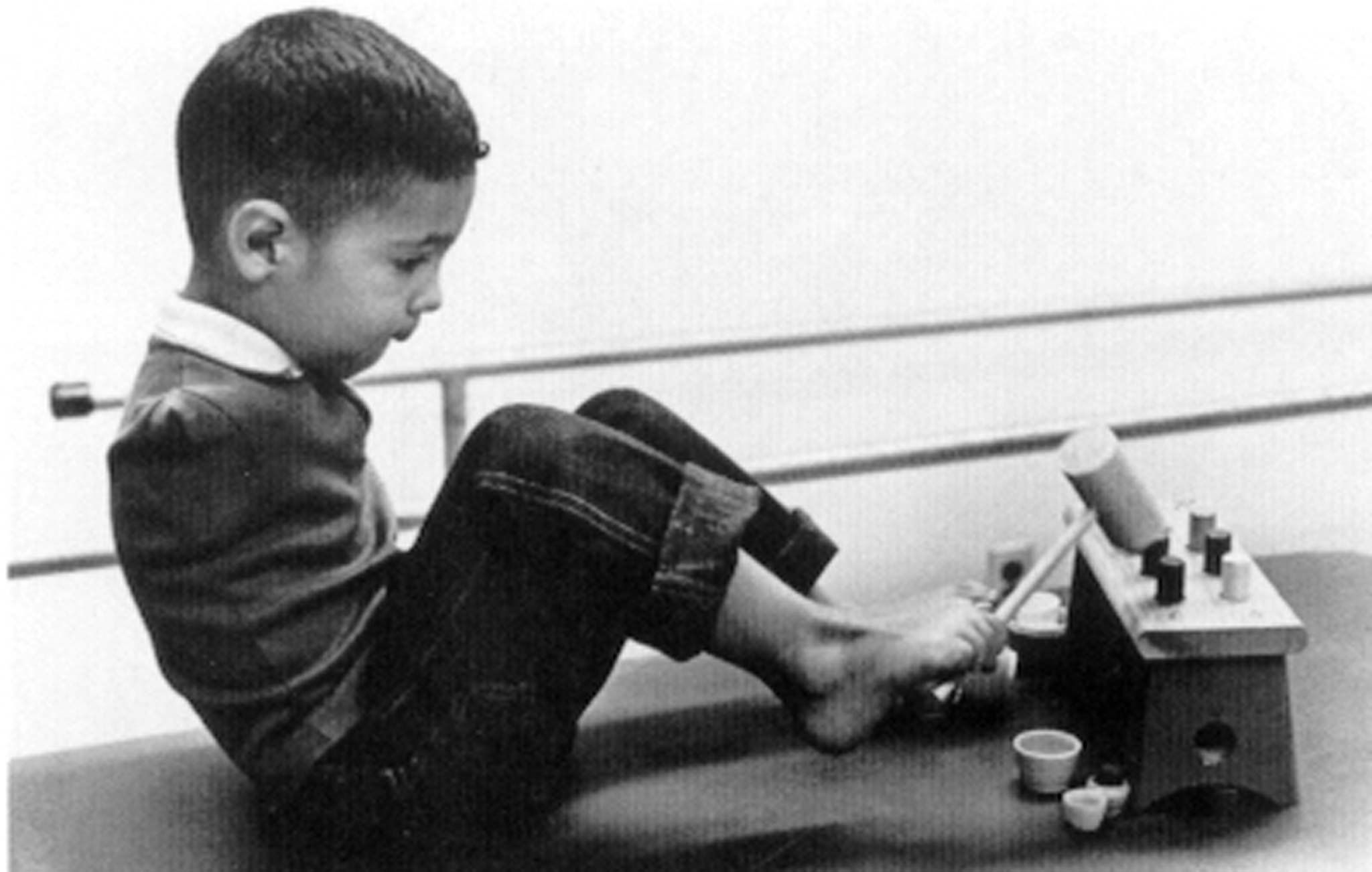 Thalidomide victim Tony Melendez is shown in an undated file photo at age 4. Melendez, who lives in Dallas, is one of a few t