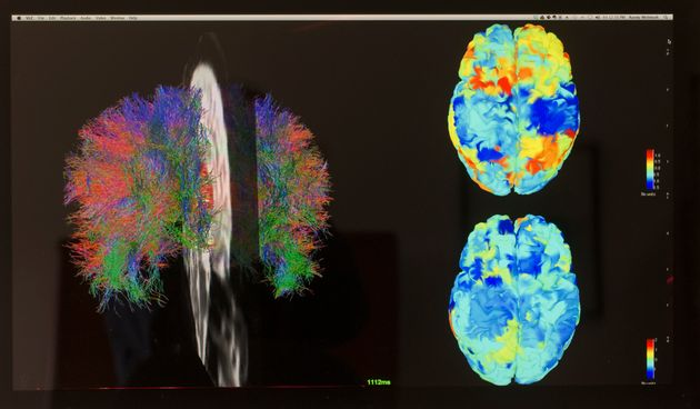 fMRI images of a