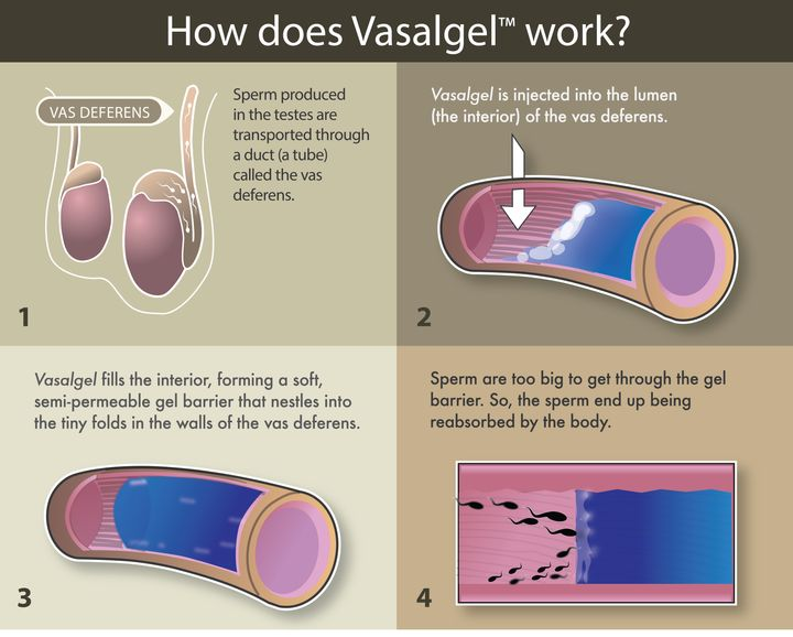 An explanation of how Vasalgel works.