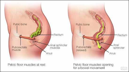 When You Visit A Pelvic Floor Physical Therapist For Constipation, He Or  She Will First Ask You About Various Aspects Of Your Bowel Health.