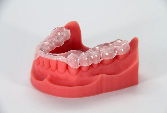 This dental model and night guard were 3D printed. It takes less time and money to custom manufacture dental prosthetics and