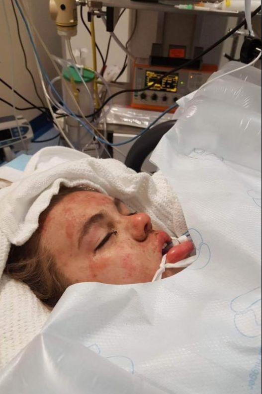 Teen Who Took Ecstasy Says Mum Was Right To Share Harrowing Coma Photos