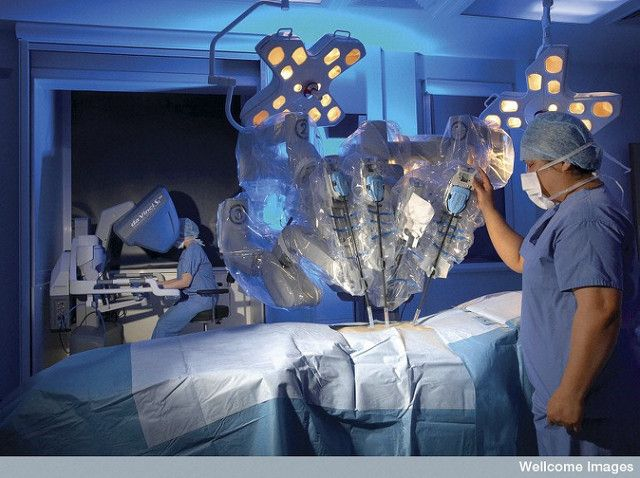 Da Vinci Robotic Assisted Surgery