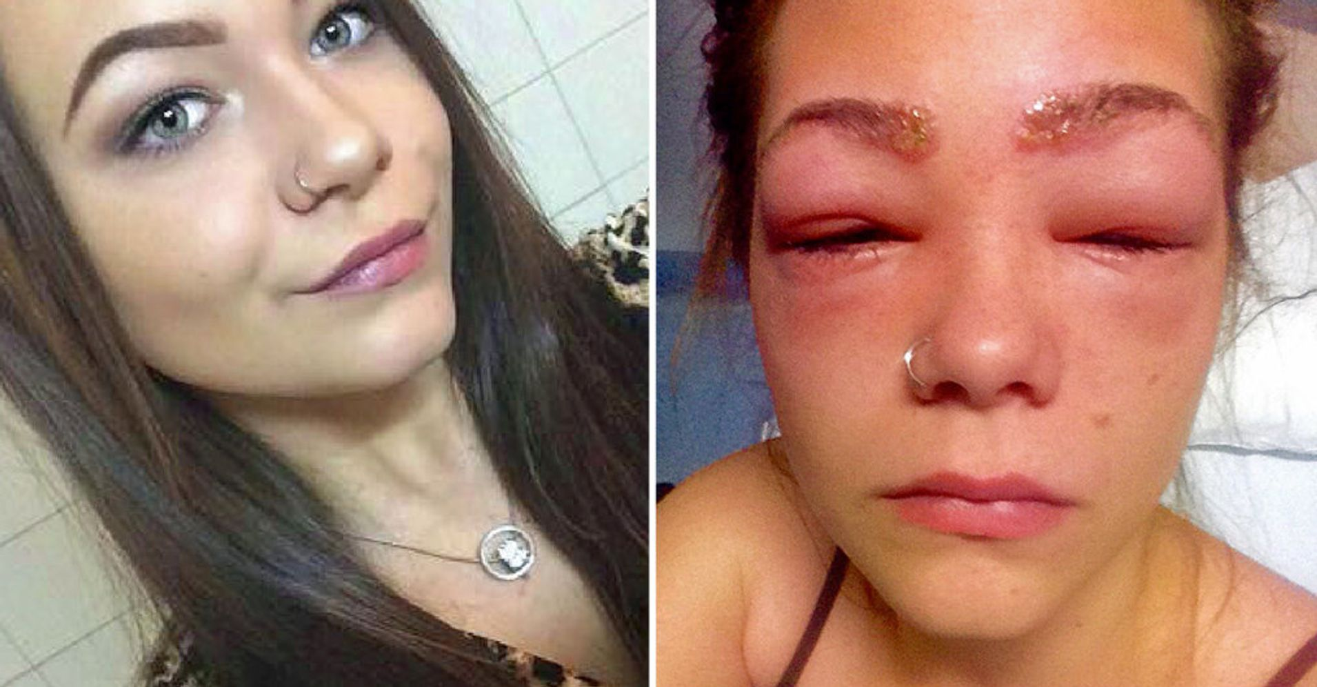 2f329ce905c Teen Almost Blinded After Suffering Horrific Reaction To Eyebrow Dye ...