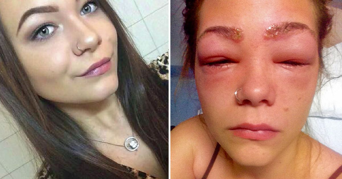 Teen Almost Blinded After Suffering Horrific Reaction To Eyebrow Dye