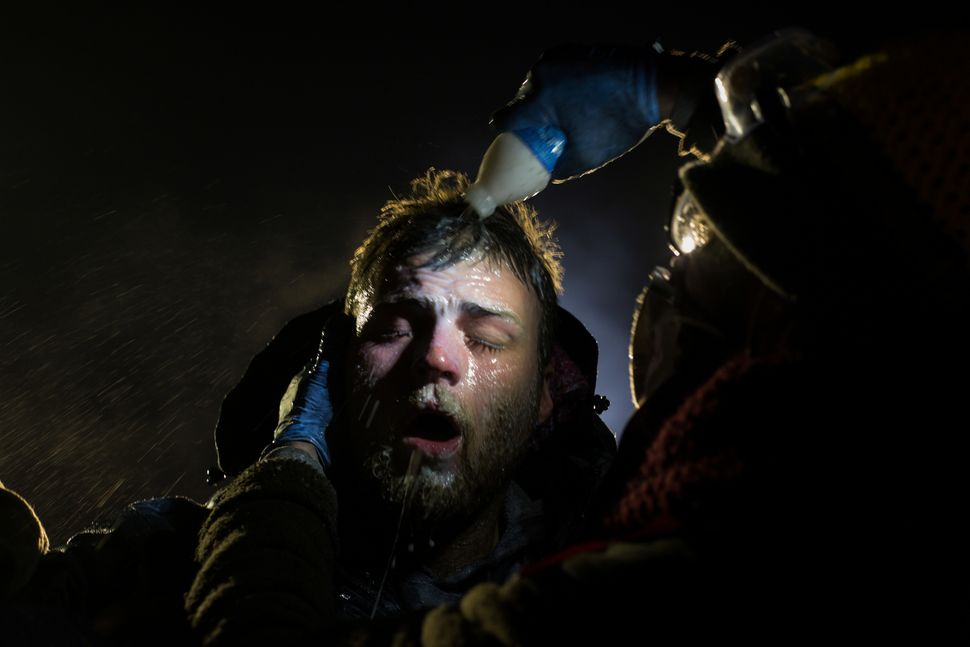 A man is treated with milk of magnesia after being pepper sprayed at the police blockade on Highway 1806 near Cannon Ball, No