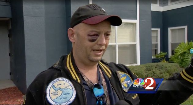 Disabled veteran attacked after defending turtle