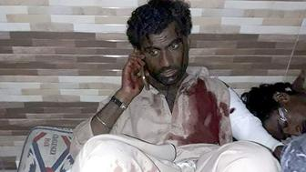 An injured Pakistani blast victim talks on mobile phone at a local hospital after a bomb explosion in the shrine of 13th century Muslim Sufi saint Lal Shahbaz Qalandar in the town of Sehwan in Sindh province, some 200 kilometres northeast of the provincial capital Karachi on February 16, 2017.   A bomb ripped through a crowded Sufi shrine in Pakistan on February 16, killing up to 35 people and wounding 60, officials said, the deadliest in a series of attacks to strike the insurgency-wracked country this week. A bomb ripped through a crowded Sufi shrine in Pakistan February 16, killing up to 35 people and wounding 60, officials said, the deadliest in a series of attacks to strike the insurgency-wracked country this week. / AFP / STR        (Photo credit should read STR/AFP/Getty Images)