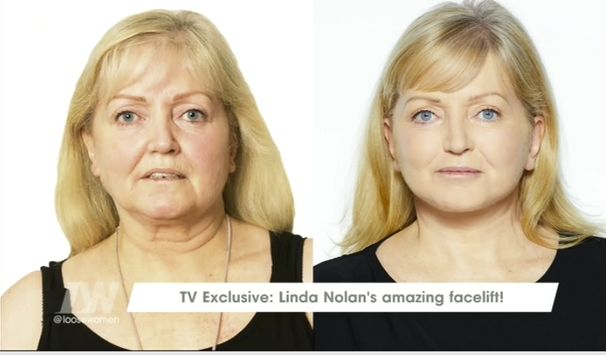 Linda before (L) and after