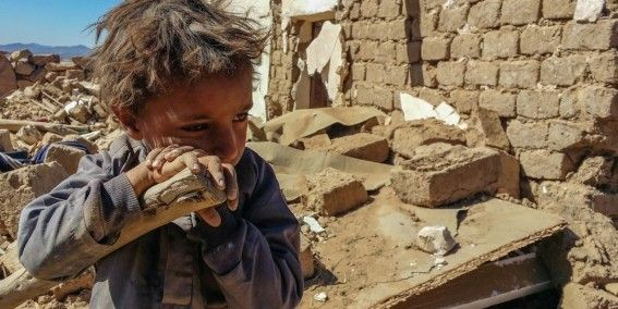 Children are suffering the most from Yemen's war and hunger crisis. Food shortages are putting them at extreme risk of deadly