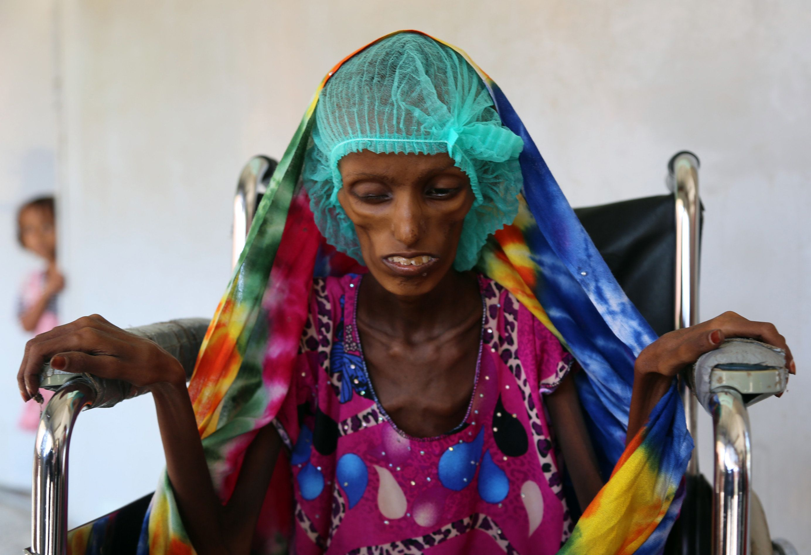 Saida Ahmad Baghili, an 18-year-old Yememi woman in Hodeidah. The city has already been hit hard by food scarcity. The closur