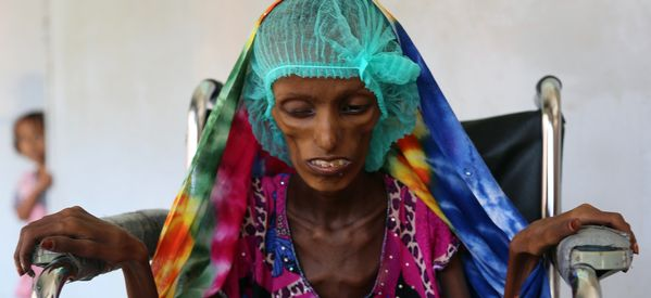 Trump's Shift On Yemen Risks Plunging The Country Into Famine