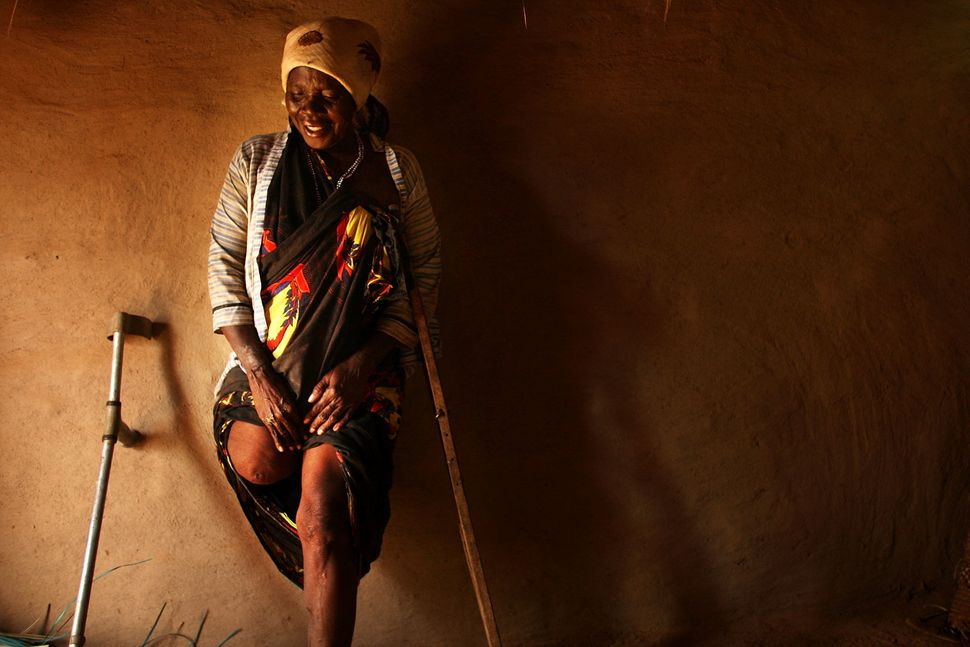 Mako Bakar Bakaro, who lost a leg in fighting in Mogadishu, Somalia in 2008, stands against the wall of her hut August 21, 20