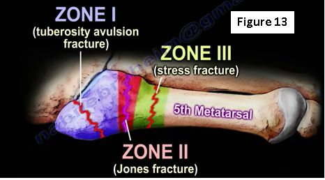 Stress Fractures of the Foot | HuffPost