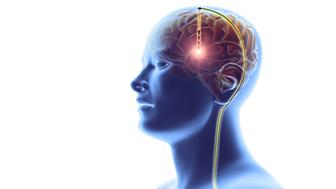 Deep brain stimulation, computer artwork. This neurosurgical treatment involves the implantation of electrodes in the cerebral lobes of the brain, linked through the scalp (top) to wires (down right) leading to a battery implanted below the skin. This sends electrical impulses to specific areas of the brain. DBS was developed for the treatment of Parkinson's disease, but is being investigated for use in other conditions.