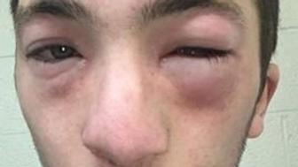 The mother of a university student with a peanut allergy says fraternity members smeared peanut butter on his face during a hazing ritual