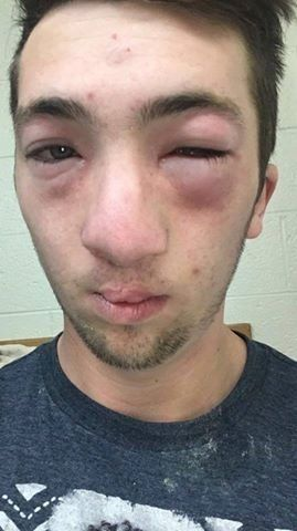 The mother of a university student with a peanut allergy says fraternity members smeared peanut butter on his face during a h