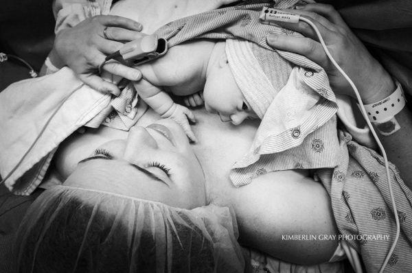 """""""Skin-to-skin after their Cesarean birth."""""""