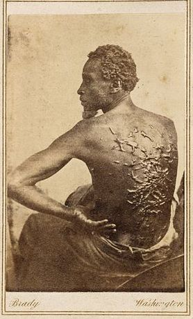 "<em>The Scourged Back</em> of ""Gordon"" an escaped slave from Louisiana, March 1863"
