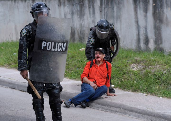 Riot policemen detain an injured peasant farmer as they evicted protesters near the Supreme Court in Tegucigalpa August 21, 2